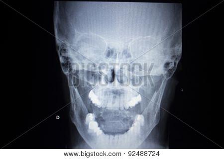 X-ray Orthopedics Traumatology Scan Nose Injury Breathing