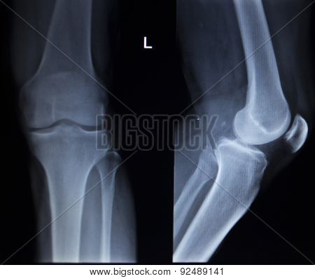 X-ray orthopedic medical CAT scan of painful knee meniscus injury leg in traumatology hospital clinic. poster