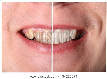 Man's incisive tooth restoration before and after treatment