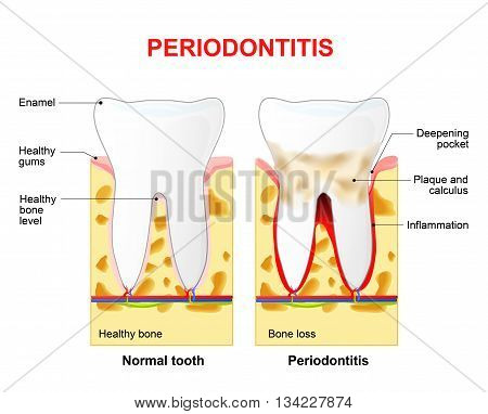 Periodontitis is a inflammatory diseases affecting the periodontium the tissues that surround and support the teeth