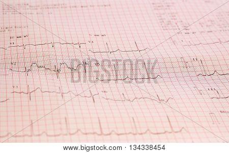 Electrocardiogram graph ekg heart rhythm, medicine concept