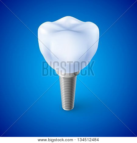 Isometric Concept of Human Dental Implant on Blue