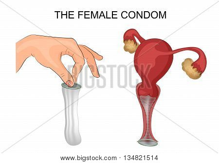 illustration of a female condom and method of application. the uterus ovaries vagina