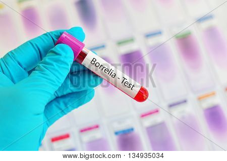 Blood sample for Borrelia test, Lyme disease diagnosis