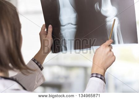 Young female doctor looking at the x-ray picture of knees in a hospital