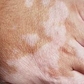Vitiligo is a medical condition causing depigmentation of patches of skin poster