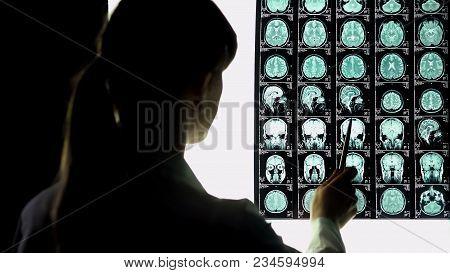Neurosurgeon Analyzing Brain X-ray, Blood Vessels Problems, Incurable Illness, Stock Footage