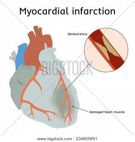 Myocardial Infarction. Heart Attack. Blocked Artery, Damaged Heart Muscle. Anatomy Flat Illustration