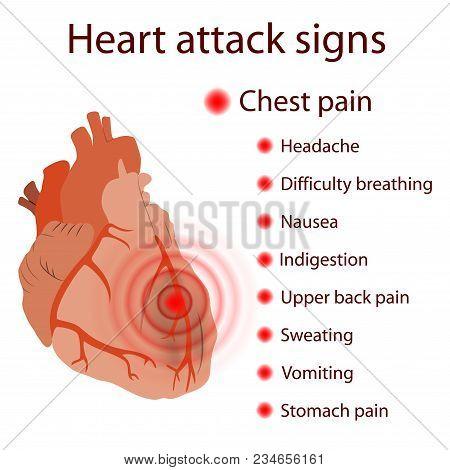 Heart Attack Signs, Symptoms. Myocardial Infarction. Damaged Heart Muscle. Medical, Anatomical Flat
