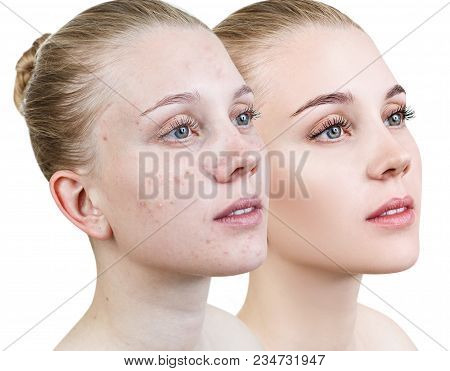 Comparison Portrait Of Young Girl With Problematic Skin Before And After Treatment And Make-up.