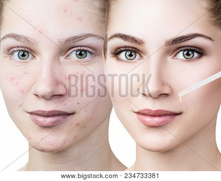 Cosmetics Oil Applying On Face Of Young Woman. Isolated On White.