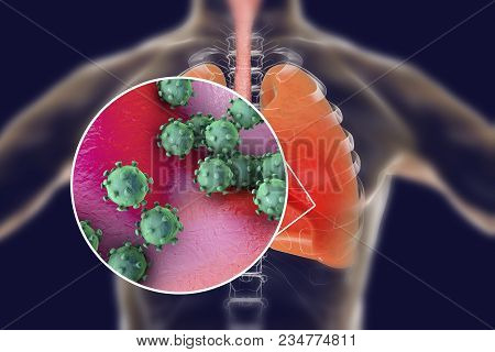 Viruses In Human Lungs, 3d Illustration. Conceptual Image For Viral Pneumonia, Flu, Mers-cov, Sars,