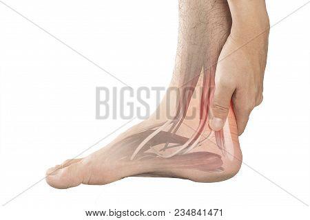 Heel Muscle Pain White Background Heel Injury