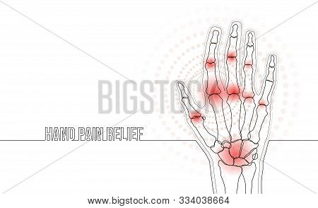 White Horizontal Rheumatoid Arthritis Continuous Line Drawing Concept Banner. Linear Bones Joints Of