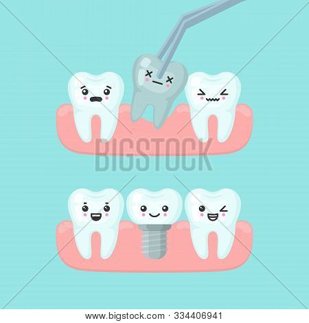 Tooth Extraction And Implantation Stomatology Concept, Cute Colorful Teeth Implant Vector Illustrati