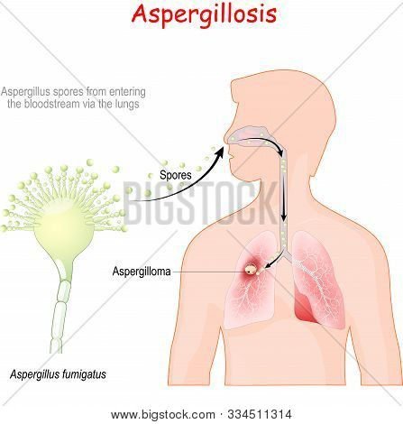 Aspergillosis is invasive fungal infection cause Aspergillus fumigatus. Airborne conidia that Inhalation by person results in fungi that grow in the lung. Infectious life cycle of pathogenic flora. poster