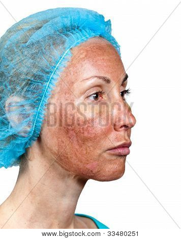 Cosmetology. Skin condition after chemical peeling TCA. The beginning of tearing away of the top burned layer around a cheek poster