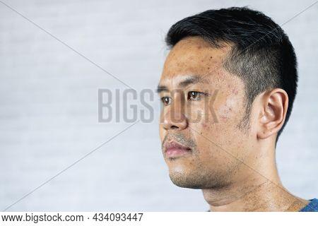 Close Up Man Acne Problem On Gray Background