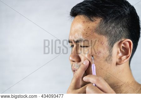 Man Using Acne Remover On His Face On Gray Background