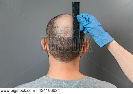 A Man With Baldness On His Head Is Examined By A Trichologist. The Doctor's Hand Measures The Bald S