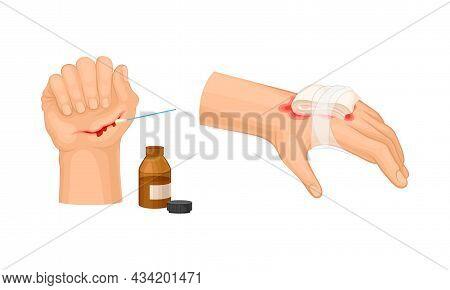 Skin Burn Injury Treatment. Hurt Human Hand With First Aid Bandage Vector Illustration