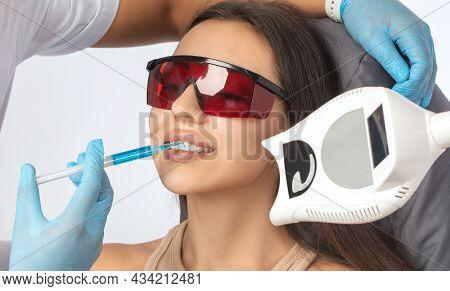 The Dentist Makes A Teeth Whitening Procedure In The Clinic To A Young Beautiful Woman. A Healthy Sm