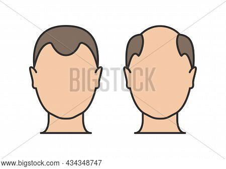 Hair Loss Man Icon Cartoon Vector Logo. Hair Loss Male Scalp Bald Illustration