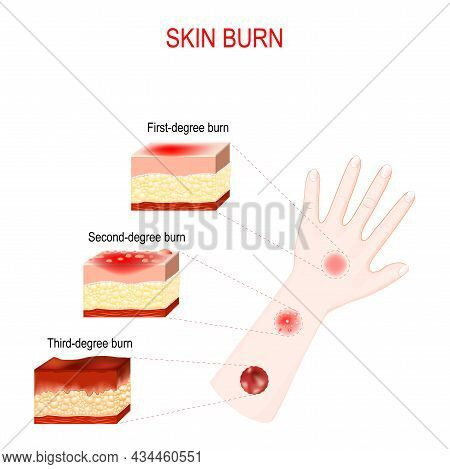 Types Of Burns. Cross Section Of Humans Skin With First, Second And Third-degree Burn. Close-up Of H
