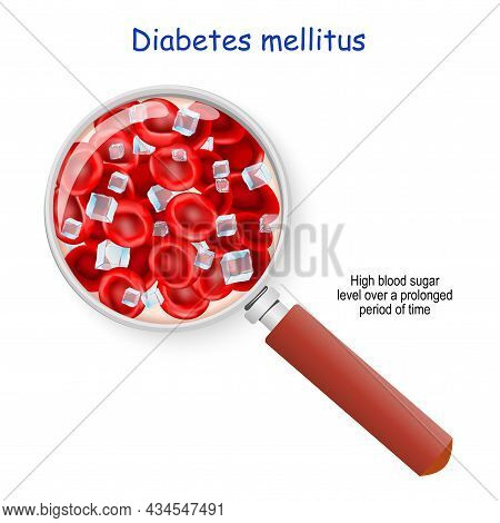 Diabetes Mellitus. High Blood Sugar Level Over A Prolonged Period Of Time. Magnifying Glass. Close-u