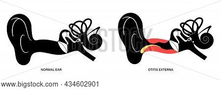 Otitis Externa, Swimmers Ear Disease. Pain And Inflammation, Earache In The Human Head. Medical Chec