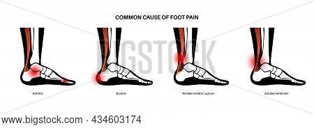 Achilles Tendon Rupture, Tendinitis And Bursitis Anatomical Poster. Ankle Injury, Ligament Sprain, I