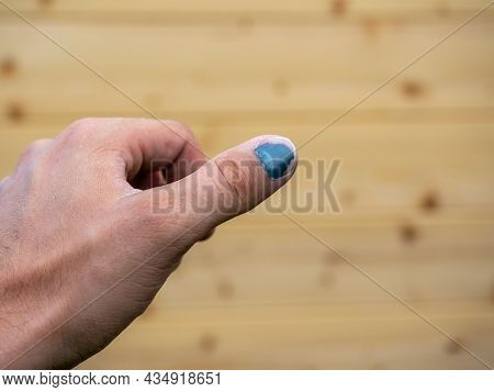 Close-up Of A Thumped Thumb. Blurred Wooden Background In The Background. Injury At Work, Bruise, He