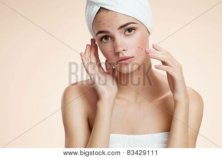Scowling girl show her acne with a towel on her head. Woman skin care concept