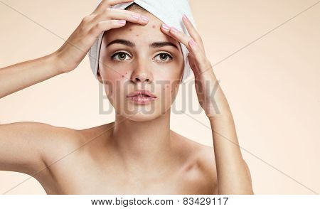 Young woman squeezing her pimple, removing pimple from her face.  Woman skin care concept