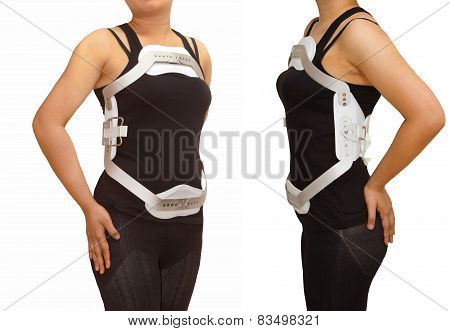 Lumbar jewet braces hyperextension brace for back truma or fracture thoracic and lumbar spine poster