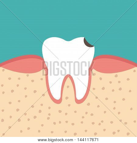 illustration of tooth sectional view tooth decay Human tooth with caries Dental tooth health problem - vector