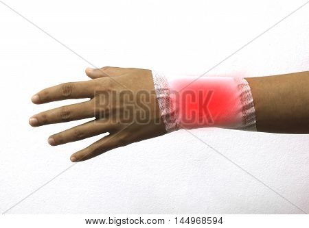 bandaged arm of a women because of a skin lesion