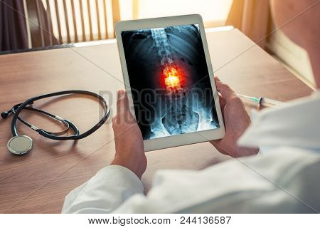 Doctor Holding A Digital Tablet With X-ray Of Spine Skeleton. Red Pain On The Bones