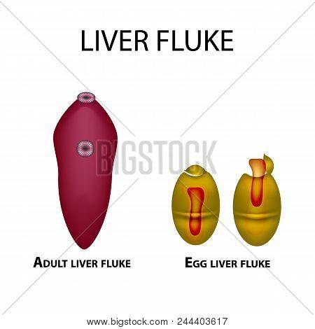 Liver Fluke. Hepatic Fluke. The Egg Trematode. Set. Infographics. Vector Illustration On Isolated Ba