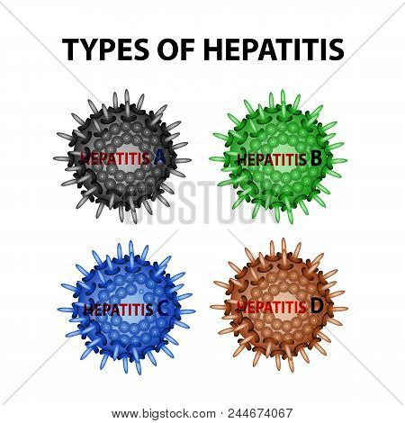 Types Of Hepatitis. Viruses Hepatitis A, B, C, D. Infographics. Vector Illustration On Isolated Back