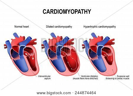 Types Of Heart Diseases: Hypertrophic Cardiomyopathy And Dilated Cardiomyopathy. Healthy Heart And H