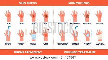Skin First Aid. Burns Treatment, Wounds And Trauma Symptoms. Degree Burn, Help Hand Healing With Cre