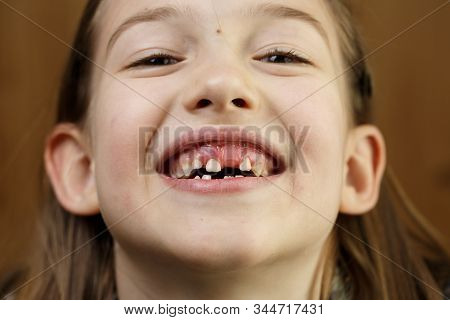 Little Girl Making Faces, Smiling, Showing Her Loose And Missing Milk Teeth. Playful, Cheerful Child