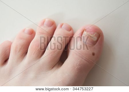 Ingrown Toenail Treatment. The Results Of Drugs For The Treatment Of Fungal Infections And Ingrown N