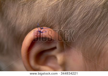 Wound Stitches. Medical, Surgical Concept. Torn Wounds With Stitches On Child Ear. Close-up Of Lacer