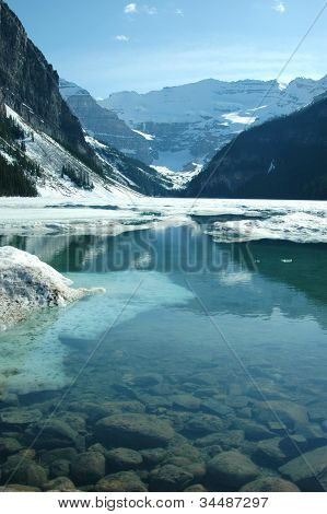 Lake Louise Thaw