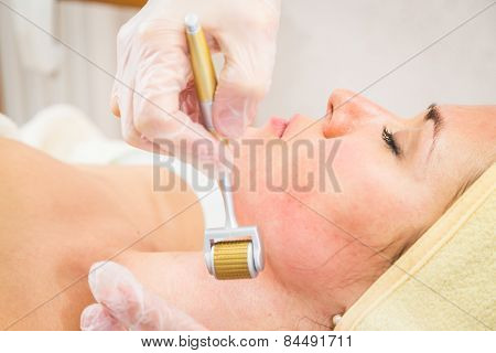 Medical cosmetic procedure. Mikronidling. Beautician performs Dermaroller procedure.young beautiful woman having an injection mesotherapy.osmetic procedures in spa clinic. poster