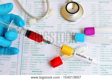 Test tube with blood sample for endorphins test