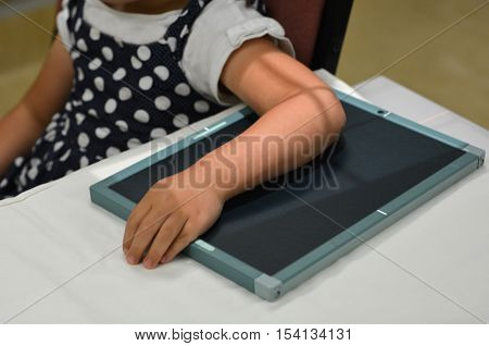 Little child girl arm during an X-ray radiography.