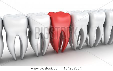 Abstract row tooth and one red tooth (done in 3d rendering)